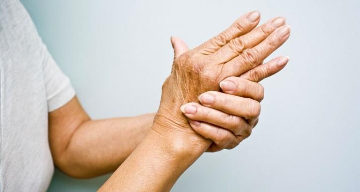 informatie over Artrose